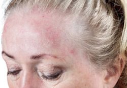 Rosacea Treatment Scarsdale NY | Mount Kisco NY