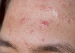 Acne Treatment Scarsdale NY | Mount Kisco NY