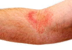 Eczema Treatment Scarsdale NY | Mount Kisco NY
